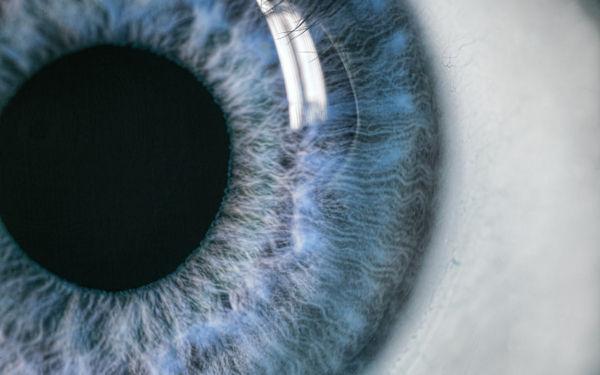 Praxis für Naturheilkunde Beate Berger Startseite Augendiagnose